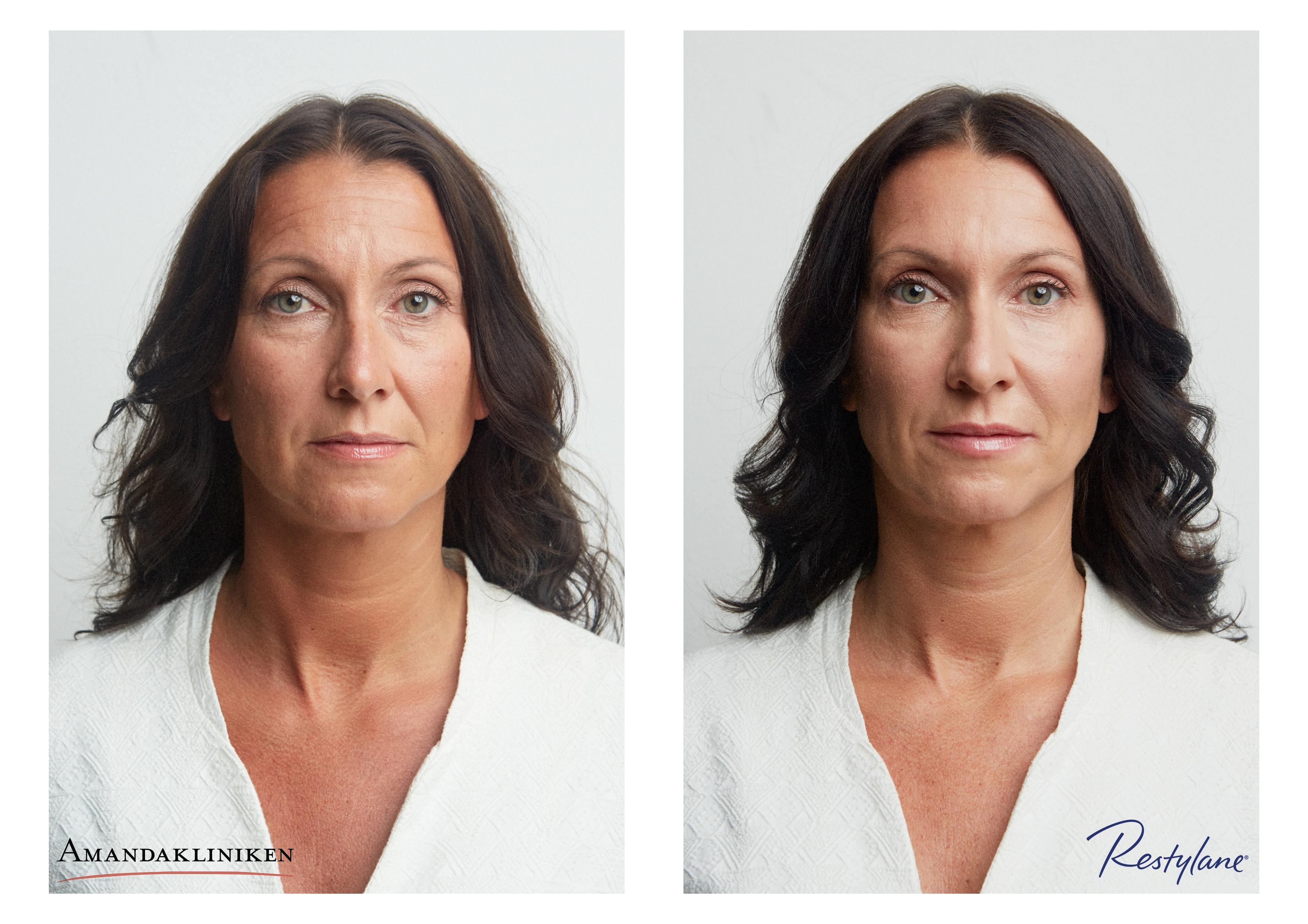 Amandakliniken Före & Efter Botox Fillers Restylane